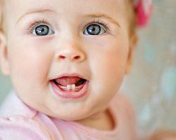 Bebeklerde Diş Çıkarma Huzursuzluğu