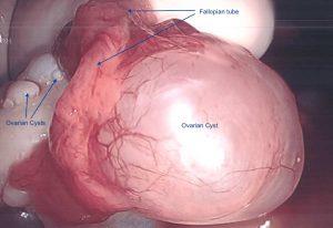 PCOS ameliyat 300x206 Yumurtalık Kisti Tedavisi